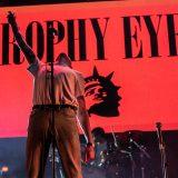 Trophy Eyes (1)